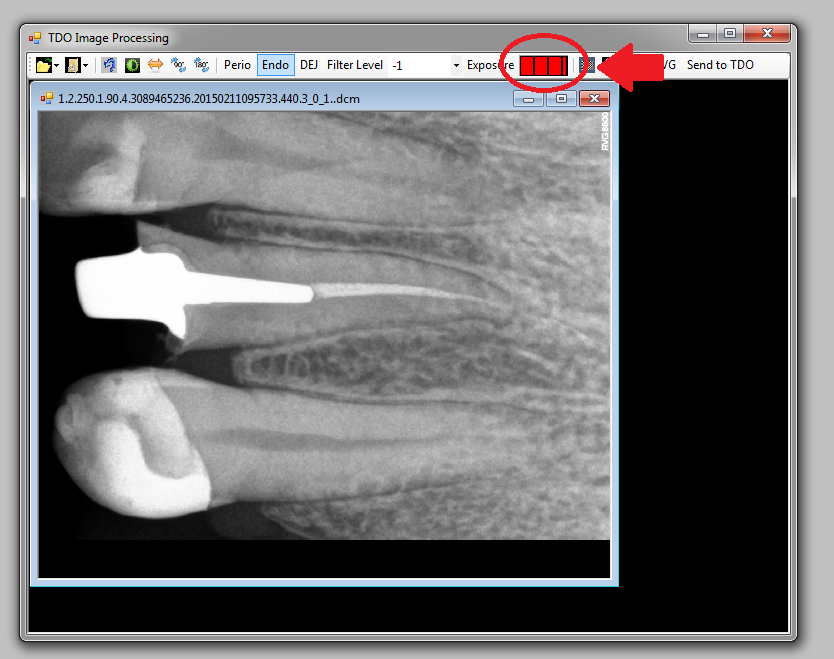 Troubleshooting Carestream Sdk X Ray Image Quality In Version 11